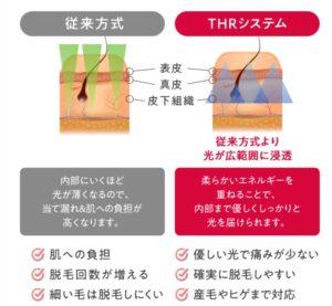 オーパスビューティ03に採用されているLHRシステムは白髪や産毛、薄い毛も脱毛できる?