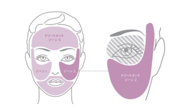 ①顔の皮膚の下に骨がある部位はケアできる